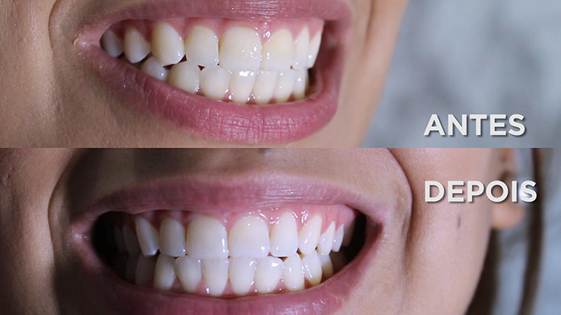 3 Tecnicas Caseiras De Clareamento Dental